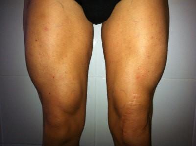Hipertrofia muscular con electroestimulacion mes 3. Elimina la atrofia muscular